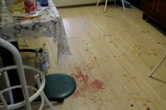 Житель Алтайского края сломал человеку челюсть